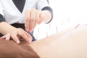 三国ヶ丘鍼灸整骨院は、治療のための鍼灸だけではなく、  女性が気になる痩身鍼灸、くびれ鍼を行っているんです!