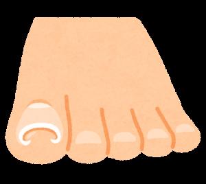 巻き爪イラスト