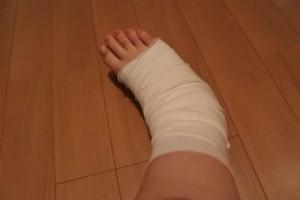 柔道整復師(整骨院)は健康保険を使用しての  治療も可能になっています。  しかし、使えるものが決まっています。    ・骨折  ・脱臼  ・捻挫  ・打撲  ・挫傷    以上5項目の症状が認められた場合、  健康保険を使用できます。