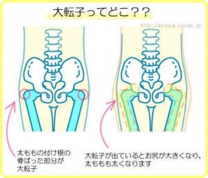 骨盤が開くと 大腿骨(太ももの骨)の大転子 という部分も一緒に外に出っ張ってきます